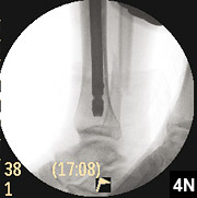 Figure 4N: Tibial nail with locking screws in place