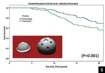 Figure 3: The Kaplan-Meier survivorship curve