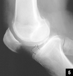 Figure 5: An anvil osteophyte