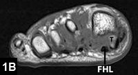 Figure 1B: The proximally retracted and rotated tibial sesamoid