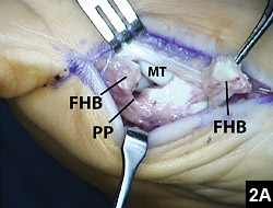 Figure 2A: Reconstruction of the plantar plate and medial head of the flexor hallucis brevis tendon