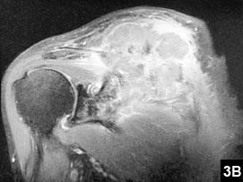 Figure 3B: Skin necrosis