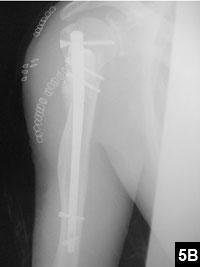 Figure 5B: Polymethylmethacrylate containing doxorubicin was applied to fill the bone cavity defect