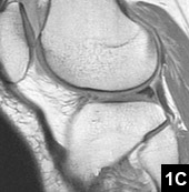 Figure 1C: A complex signal increase in the lateral meniscus anterior horn area