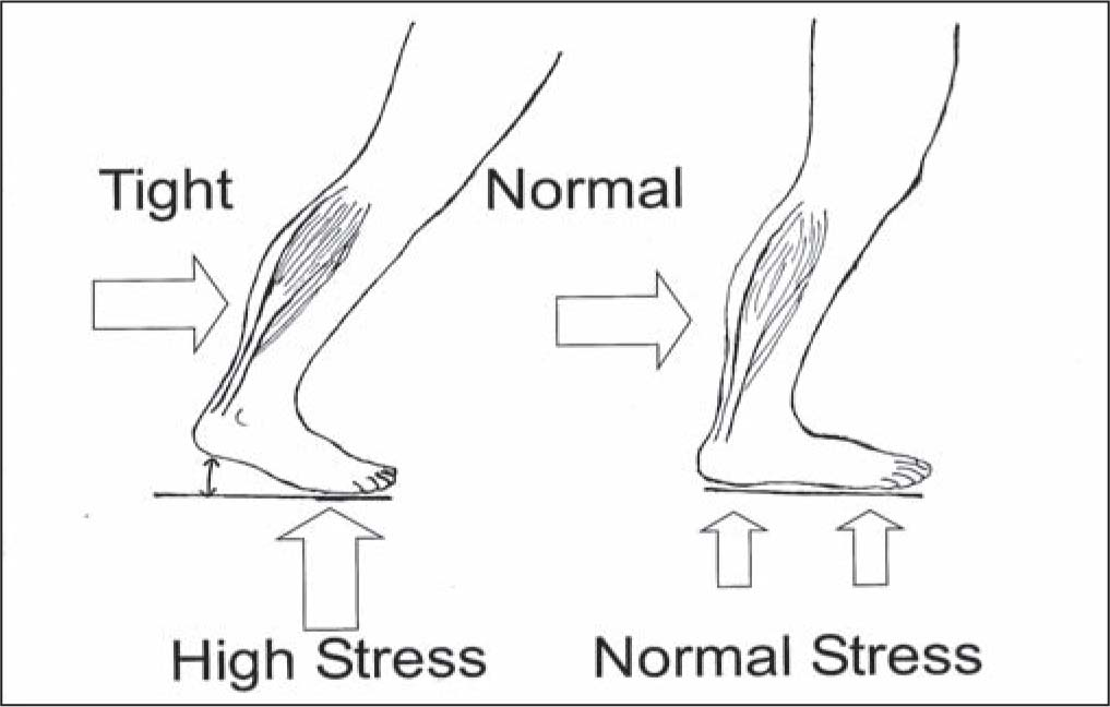 Tight Achilles Tendon Increases Pressure on the Forefoot (left). Normal Achilles Allows Normal Pressure on the Foot (right).