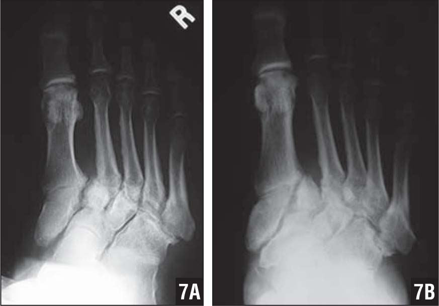 Charcot Arthropathy with Unstable Subluxation of First Cuneiform (A). Stabilization and Lack of Progression of Deformity 13 Months After Tendon Lengthening and Walking Boot (B).
