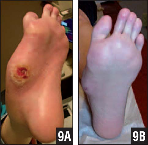 Midfoot Ulcer Before Tendon Lengthening and Walking Boot (A). Foot Appearance 9 Months Later (B).