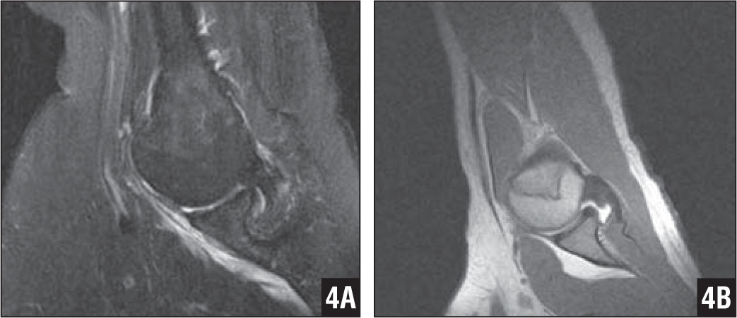 The Abduction External Rotation (ABER) View for MRI of the Shoulder