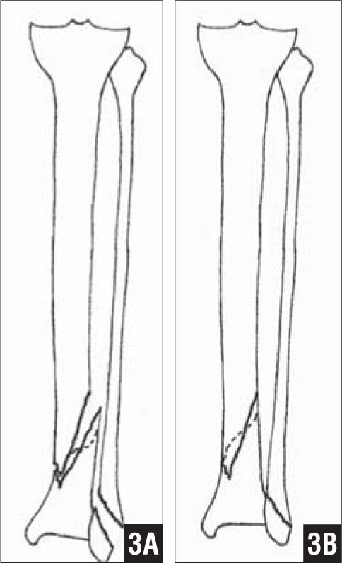 Outline Tracing of Individual Fracture Fragments (A). Repositioning of Fragments into a Reduced Position Similar to Putting Together the Pieces of a Jigsaw Puzzle. The Planned Plates and Screws Are Then Drawn in as Shown in Figure 2E (B).