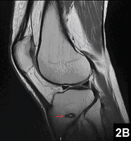 Figure 2B: A well-reduced proximal tibiofibular joint