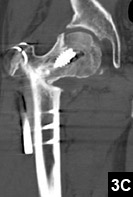Figure 3C: Minimally displaced vertical fracture of the femoral head