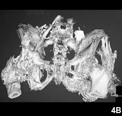 Figure 4B: Extensive heterotopic ossification