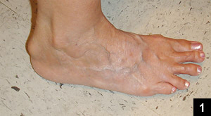 Figure: Insertional Achilles tendinitis