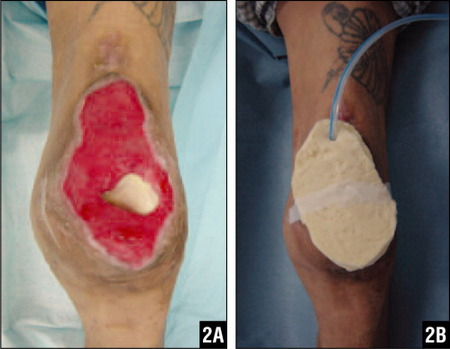 After Serial Debridement, the Patella Was Completely Removed (A). The Substitute Negative Pressure Wound Dressing Was Applied to the Soft Tissue Defect with Exposed Knee Joint (B).