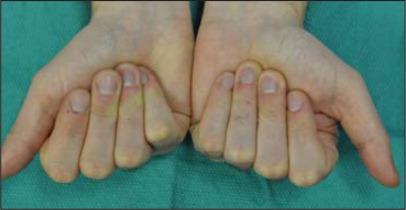 Fingers in flexion.
