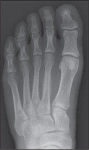 AP radiograph of the left foot 1 month after injury shows evidence of a healing second metatarsal diaphysis stress fracture.