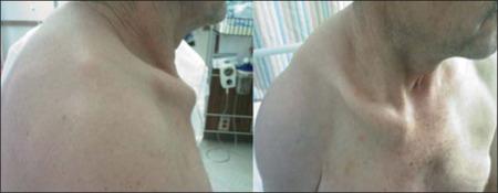 Clinical photographs demonstrating bipolar clavicular dislocation.