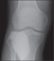 Radiograph of the right knee 18 months after intralesional curettage with bone graft substitute showing no recurrence of giant cell bone tumor.