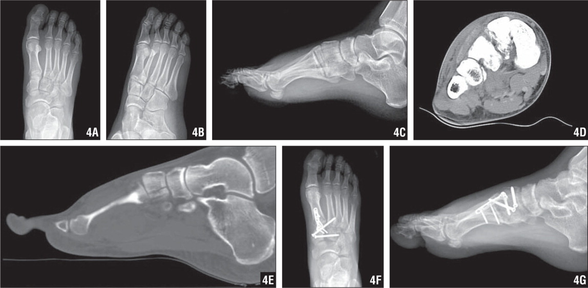 AP (A), oblique (B), and lateral (C) radiographs showing injury to the first and second tarsometatarsal joints, fracture of the medial cuneiform, and possible fracture of the lateral cuneiform. Axial (D) and sagittal (E) CT scans showing fracture of the second cuneiform and fracture dislocation of the second metatarsal base, confirming an injury to the Lisfranc joint. AP (F) and lateral (G) radiographs showing fixation of the intercuneiform joint and the first and second tarsometatarsal joints.