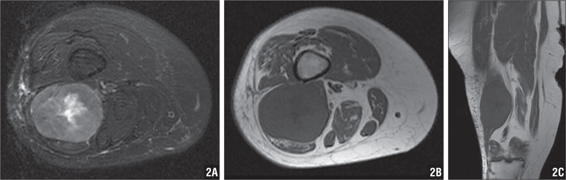 Axial fat-saturated T2-weighted MRI demonstrating a hyperintense mass in the posterior compartment of the lateral distal thigh (A). Axial (B) and coronal (C) T1-weighted MRIs revealing a mass with decreased signal intensity within the short head of the bicep femoris muscle.