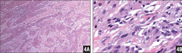 Low-magnification micrograph (40× magnification) showing diffusely infiltrating tongues and cords of the neoplasm in a desmoplastic background (A). High-magnification micrograph (200× magnification) showing characteristic spindle cell configuration with nuclear enlargement, atypia, and prominent nuclei (B).