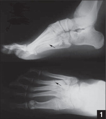 Lateral (top) and AP (bottom) plain radiographs of the right foot showing mild cavovarus positioning as well as a fracture of the proximal fourth metatarsal (arrows).