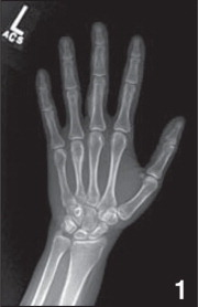 Plain radiograph of the left hand demonstrating voriconazole-induced periostitis that is most apparent on the middle phalanges of the third and fourth finger and the proximal phalanx of the third finger.