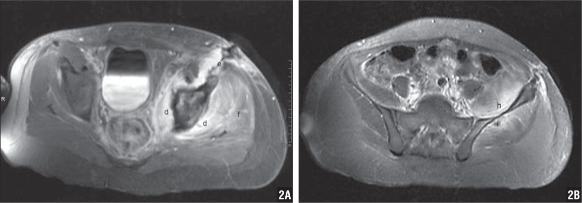 Patient 6's postoperative pelvis MRI with contrast done after drainage of obturator internus abscess. Shown are inflammatory changes within the obtuator internus muscle (d), the anterior incision used for abscess drainage (e), and inflammatory changes in the gluteus medius muscle (f) (A). Patient 6's postoperative pelvis MRI with contrast done after drainage of obturator internus abscess. Shown are inflammatory changes within the illiacus muscle (h) and a small abscess surrounded by inflammatory changes within the gluteus medius muscle (i) (B).