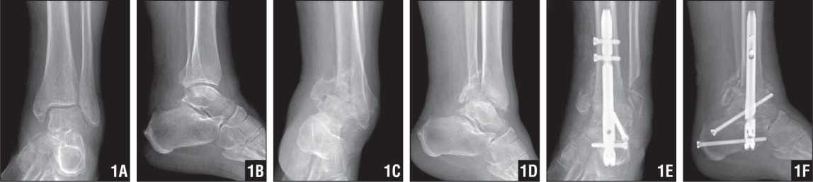 A 57-Year-Old Woman with Diabetes, Peripheral Neuropathy, Vasculopathy, End-Stage Renal Failure Managed by Peritoneal Dialysis, Aortic Stenosis, Hypertension, and Hyperlipidemia Sustained a Minimally Displaced Bimalleolar Fracture in a Fall. Because of Her Poor Medical Condition, She Was Initially Treated by Closed Methods (A, B). The Patient's Fracture Went on to Displace Despite Casting and Maintaining Nonweight Bearing (C, D). Ten Weeks After the Initial Injury, the Patient Underwent Subtalar and Ankle Arthrodesis with an Intramedullary Device. This Method Was Chosen Because of the Patient's Poor Bone Quality and Medical Condition (E, F).