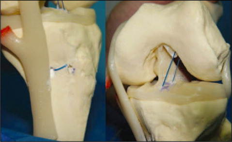 The Schematic View of the Double-Bundle and Double-Tunnel ACL Reconstruction with Looped Proximal Tibial Fixation Procedure on a Model. The U-Shape Anchorage Is on the Tibia and the Dual Fixation Is on the Femur. This Is an Anatomical Double-Bundle Double-Tunnel Reconstruction with No Tibial Hardware.
