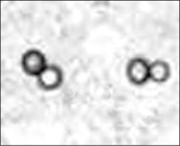 Blastomycosis Yeast in a Human on Microscopy with Characteristic Thick-Walled Budding Mother Cell and Single Equal-Size Daughter Cell.