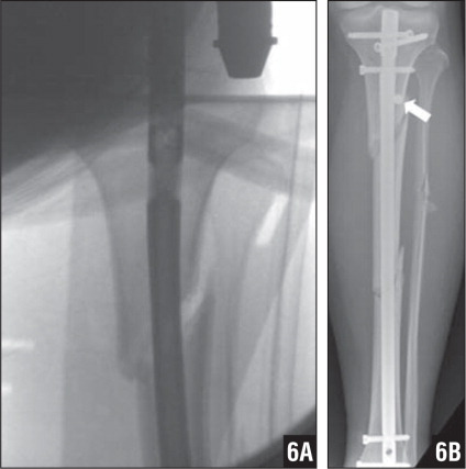 Valgus deformity is seen during initial insertion of an intramedullary nail of the proximal portion of this segmental fracture (A). The nail was removed and a blocking screw (arrow) placed just lateral to the central axis of the tibia to correct this deformity (B).