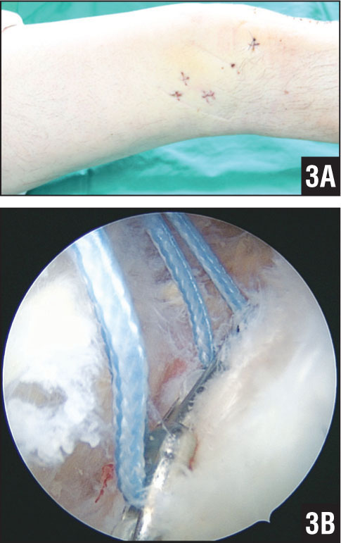 No additional skin incision and open soft tissue dissection were required (A), and complete sitting could be observed arthroscopically (B).