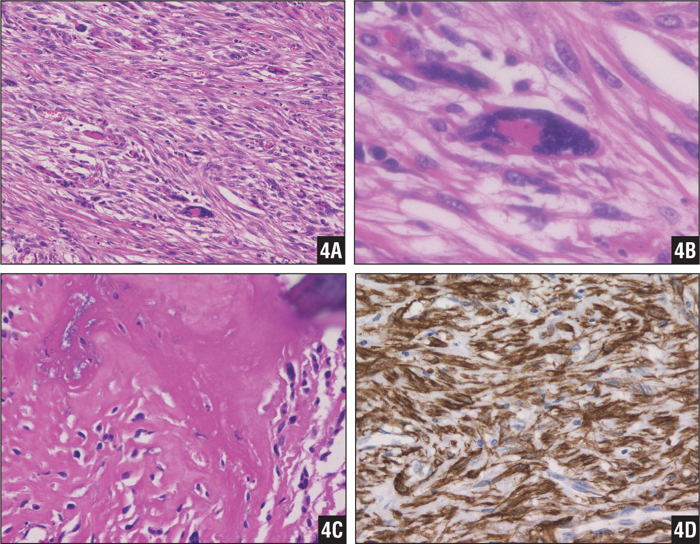 The tumor contained spindle cells in a predominantly disorderly pattern intermixed with herringbone or pericytomatous patterns (hematoxylin-eosin stain, original magnification ×40) (A). High-power view of the giant multinucleated cell (hematoxylin-eosin stain, original magnification ×100) (B). Osteoid tissue was provided, indicating the transformation to osteosarcoma (hematoxylin-eosin stain, original magnification ×40) (C). Smooth muscle antibody indicated a malignant transformation to leiomyosarcoma (αsmooth muscle antibody, original magnification ×100) (D).