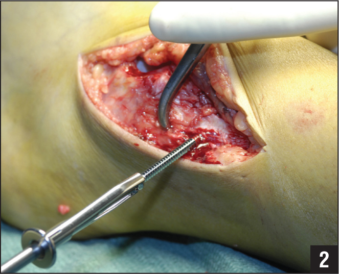 Intraoperative photograph showing placement of the syndesmotic screw.