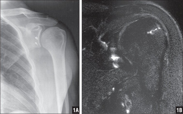 Anteroposterior radiograph of the left shoulder with external rotation. Good shoulder alignment with no obvious osteoarthritic changes of the humeral head articular surface. A small lytic area appears to involve the greater tuberosity of humeral head. Suture anchors from prior Bankart repair are intact (A). Coronal T2-weighted magnetic resonance imaging of the left shoulder showing small area of abnormal signal enhancement laterally in the greater tuberosity of the humeral head (B).