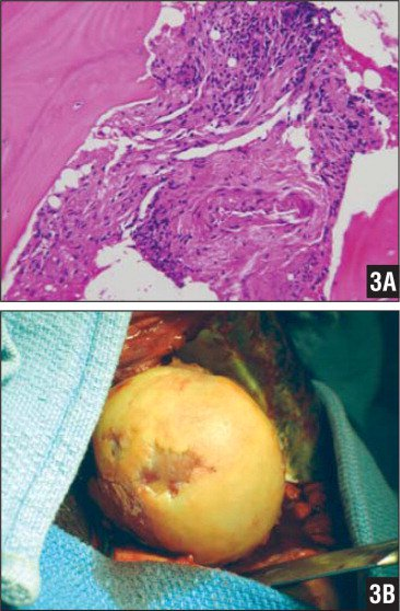 Photomicrograph of a tissue specimen from the greater tuberosity cystic lesion showing focal intertrabecular fibrosis with mild, chronic inflammation (hematoxylin-eosin stain, ×200) (A). Intraoperative view of the humeral head following surgical exposure through an anterior approach using the deltopectoral interval. Photograph of a gross specimen showing generalized cartilaginous surface damage with multiple areas of full-thickness defects (B).
