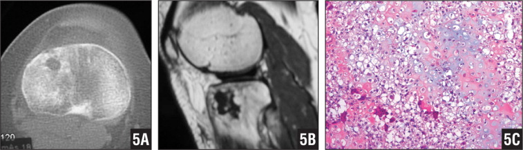Computed tomography scan (A) and T1-weighted magnetic resonance image (B) showing a clear cell chondrosarcoma at the proximal tibial epiphysis. Photomicrograph showing proliferation of cells, with abundant optically empty or eosinophilic cytoplasm and centrally located vescicular nuclei. Production of immature bone by tumor cells is a peculiar feature. Scattered giant cells (hematoxylin-eosin stain ×20) (C).