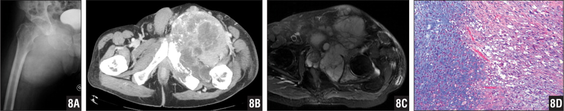 Radiograph (A), computed tomography scan (B), and T2-weighted magnetic resonance image (C) showing a dedifferentiated chondrosarcoma at the pelvis. Photomicrograph showing abrupt transition between a low-grade chondrosarcoma (left) and a high-grade spindle cell sarcoma (right) (hematoxylin-eosin stain ×10) (D).