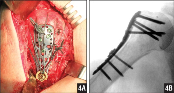 Photograph showing that once the 3.5-mm cortical screw fitted with 2 washers is fastened, the 4.5-mm washer is moved downward to the screw hole, and tension is transmitted through the sutures (A). Postoperative radiograph of the final location of the placement of the PHILOS plate (Synthes, West Chester, Pennsylvania) (B).