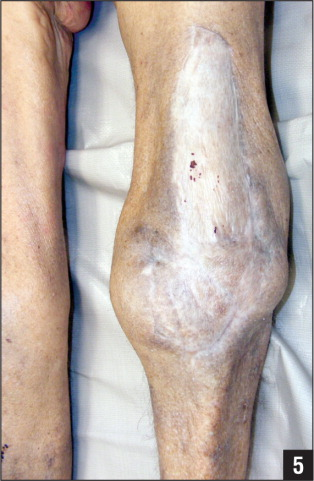 Daptomycin Resistance in Prosthetic Joint Infections