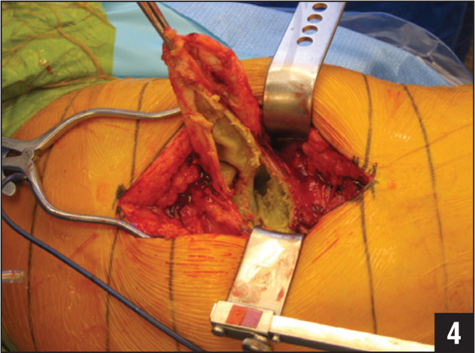 Intraoperative photograph of a pseudotumor found during revision total hip arthroplasty.