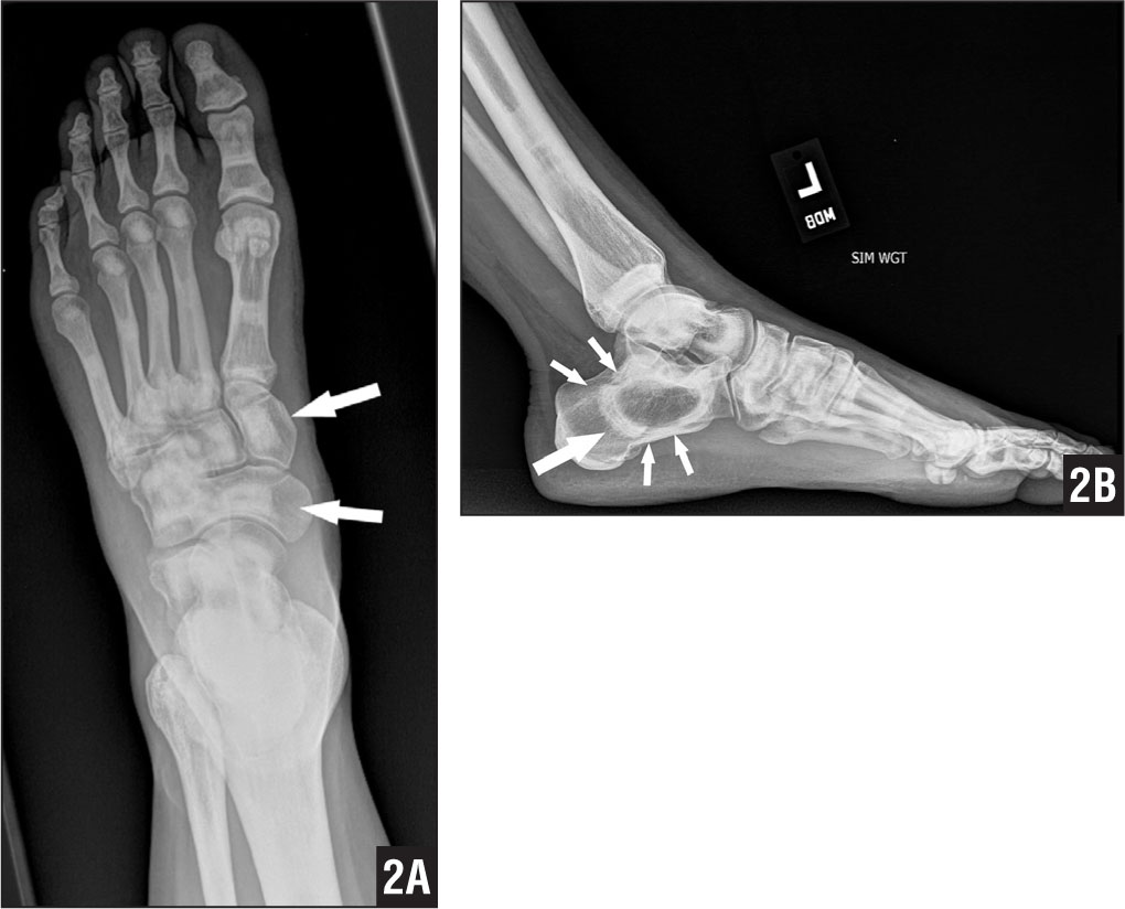Anteroposterior (A) and lateral (B) radiographs of right foot demonstrating diffusely increased sclerosis with a bone-in-bone appearance (arrows) in the tarsal bones.