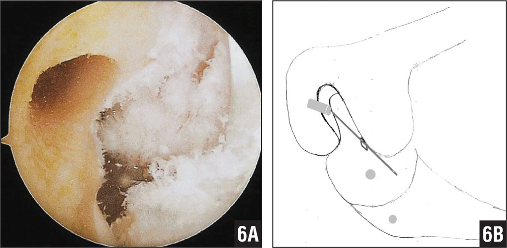 Arthroscopic image of the femoral tunnel is created at the 10-o'clock position on the wall of the femoral notch (A). Diagram of femoral tunnel created at the 10-o'clock position via the anteromedial portal (B).