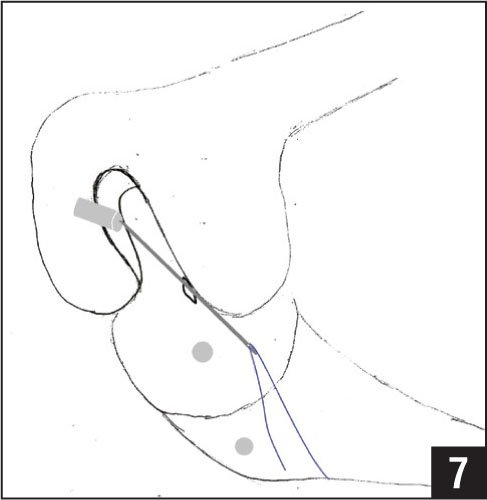 Diagram of the passing beath pin passed through the femoral tunnel via the anteromedial portal and used to pass the passing suture.