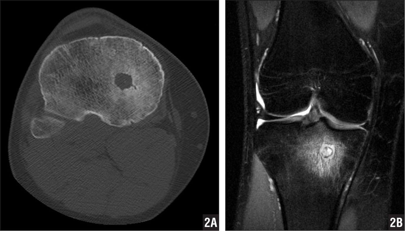 A 23-year-old man presented after 18 months of knee pain due to medullary osteoid osteoma. Axial computed tomography scan from a treatment planning study showing the lucent osteoid osteoma, subtle central calcification, and surrounding medullary sclerosis. Note the vascular channel entering the medial aspect of the lesion (A). Coronal proton-density fat-saturated magnetic resonance image showing a zone of marrow edema centered on a high-signal nidus adjacent to the physeal scar (B).