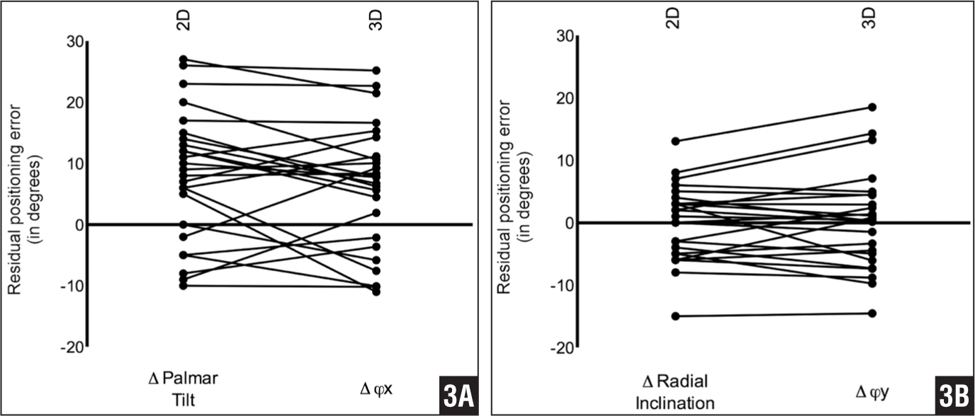 Positioning deficiency assessed by radiographic 2-dimensional evaluation (left column) vs 3-dimensional evaluation with computed tomography (right column). Dissimilarity between the 2 methods is visualized by the steepness of the connecting line between 2- and 3-dimensional results in 1 patient. Differences are due to the fact that rotations around the bone axis cannot be observed using 2-dimensional evaluation. The dissimilarity between palmar tilt and Δφx (A) and the dissimilarity between radial inclination and parameter Δφy (B) are shown.