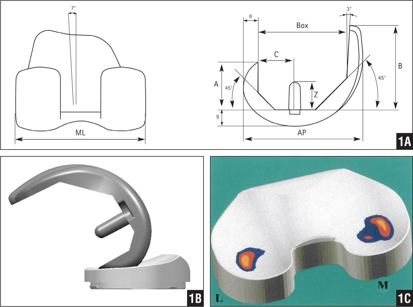 Illustrations of the Columbus Navigated TKA (Aesculap AG, Tuttlingen, Germany). The length of the posterior femoral condyles is reduced with a small radius (45°). When combined with the 3° polyethylene posterior slope, the total intrinsic flexion ability of the implant is theoretically improved up to 90°+45°+3°=138°. Abbreviations: 8, thickness in mm of the posterior prosthesis (posterior-femoral cut), 9, thickness in mm of the distal prosthesis (distal-femoral cut); A, height of the posterior condyle; AP, anteroposterior; B, height of the anterior condyle; BOX, anteroposterior distance of the distal femoral bone; C, distance between the peg hole and the posterior condyle; ML, mediolateral; Z, length of the peg (A). Illustration of the Columbus Navigated TKA with a built-in posterior slope of 3° in a standard deep dish or ultracongruent version (B). Illustration showing that maximum load force (2.5× body weight) while heel strike is at 0° is at the posterior half of the polyethylene on an area of approximately 236 mm2 (red and blue). This is expected in a 3° posterior slope tibial polyethylene design. Abbreviations: L, lateral; M, medial (C). [Images reprinted with permission from Aesculap Implant Systems, LLC.]