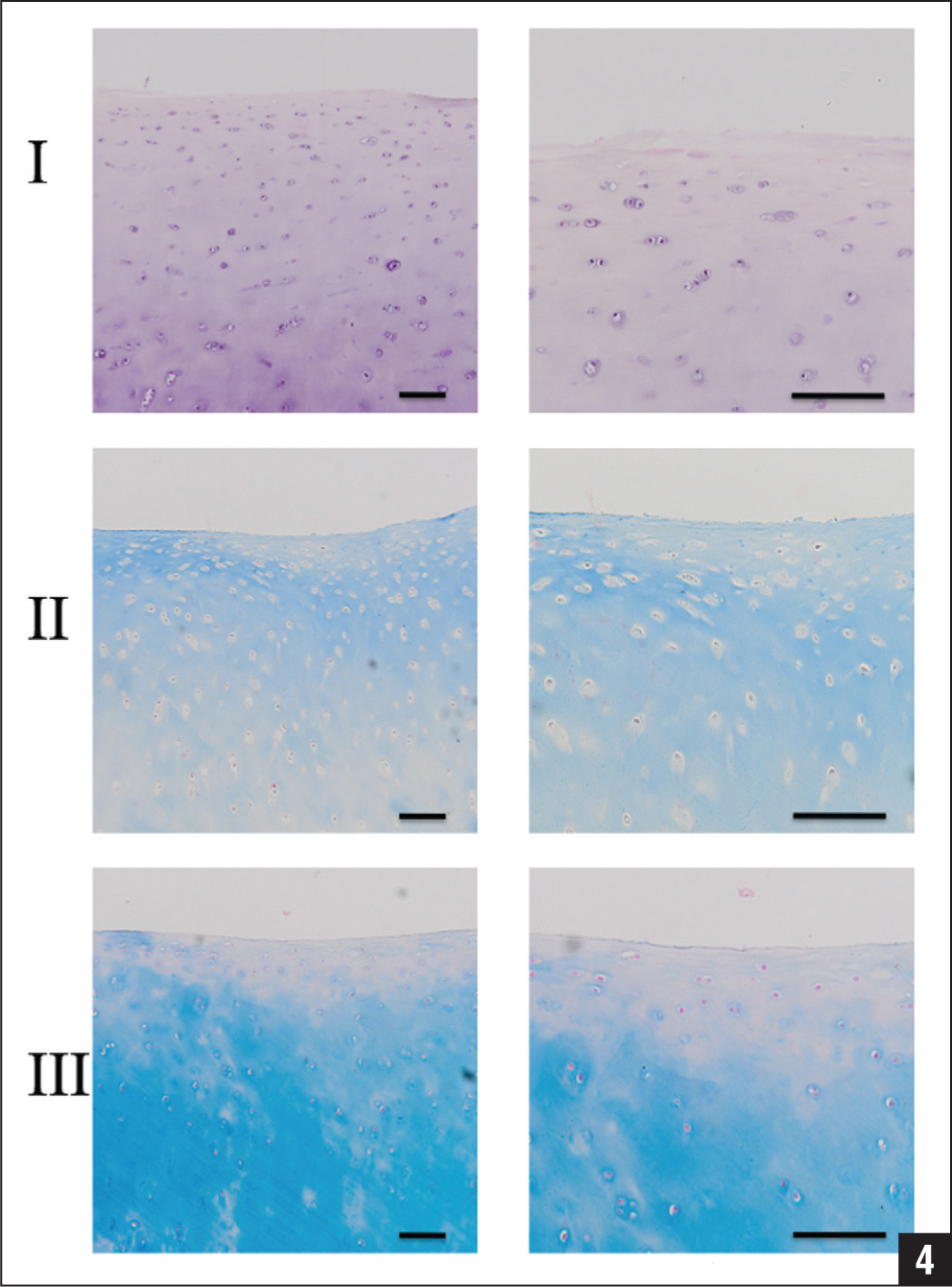 Hematoxylin-eosin (I), azan (II), and alcian (III) stains of human osteoarthritic chondrocytes 4 days after treatment (original magnification × 100 [left column] and ×200 [right column]) on 50-μm slices.