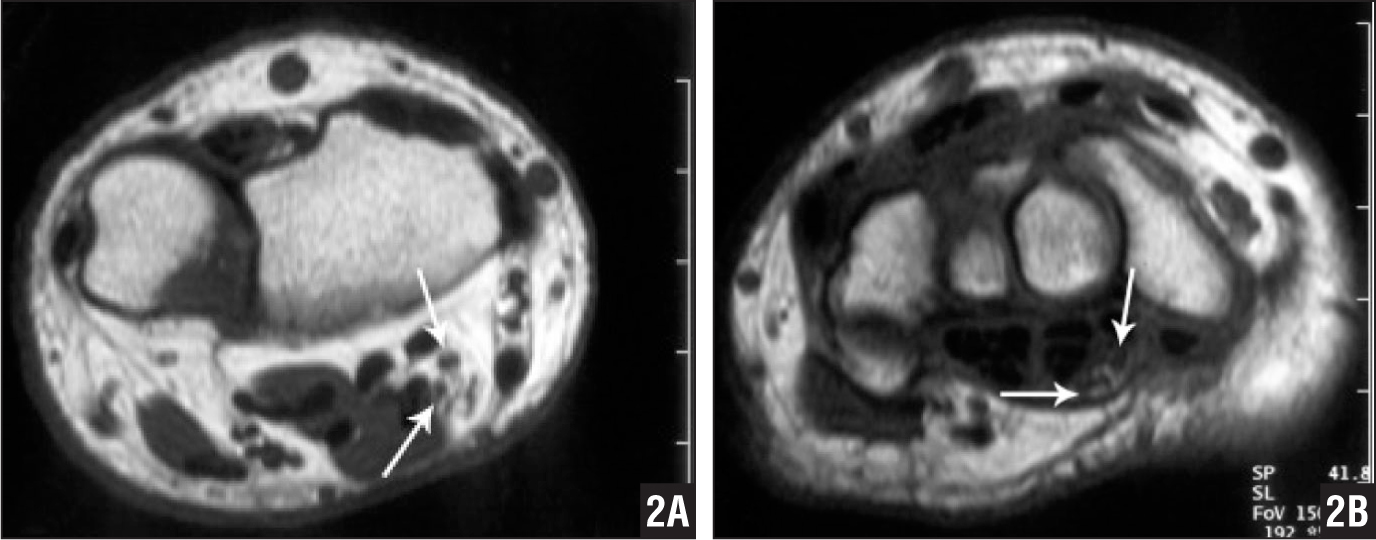 T1-weighted axial magnetic resonance image showing 2 trunks of the median nerve (arrows) proximal to the carpal tunnel (patient 1, left forearm) (A). T1-weighted axial magnetic resonance image showing 2 trunks of the median nerve (arrows) in the carpal tunnel (patient 1, left wrist) (B).
